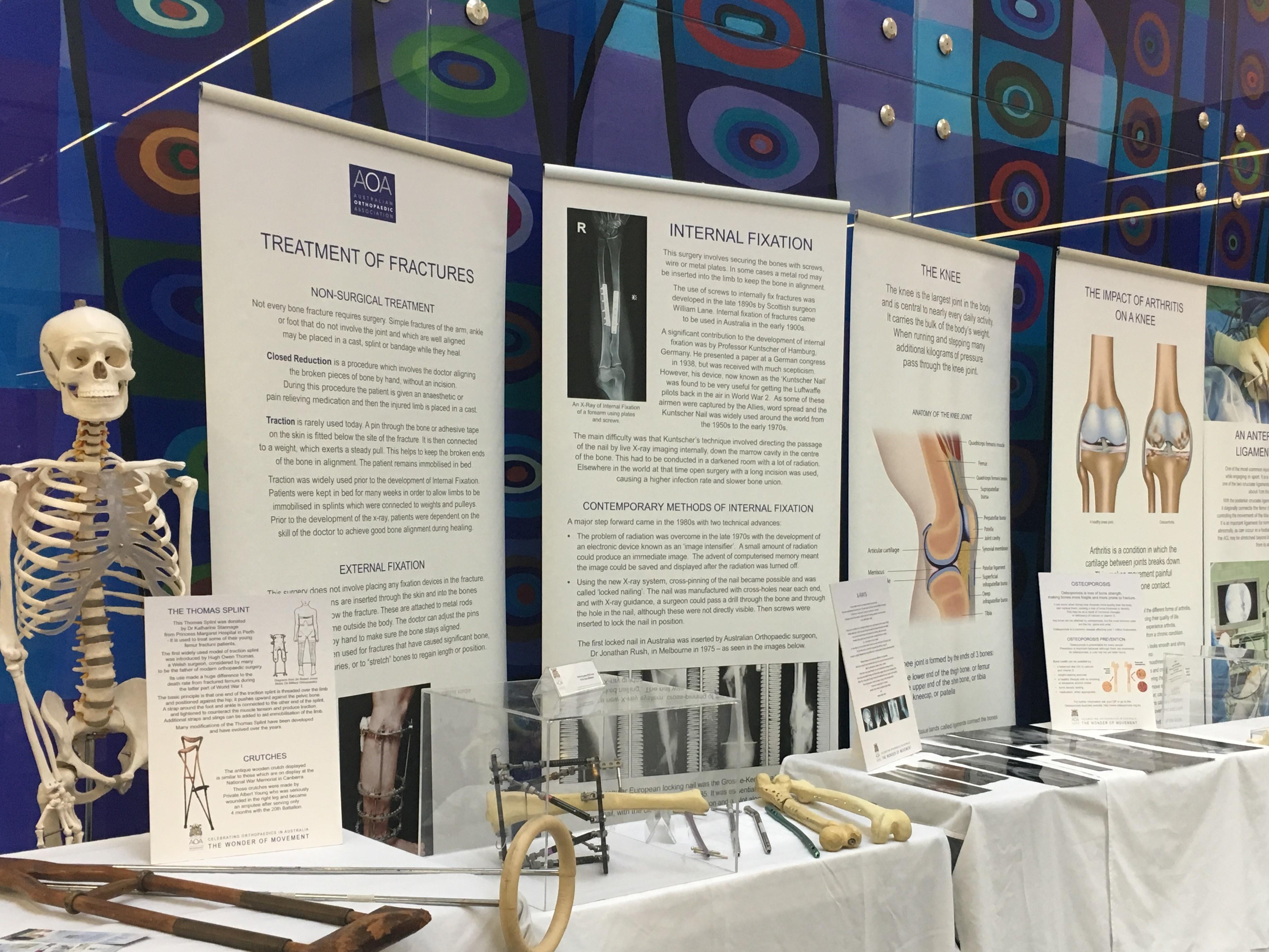 Exhibition Displays Adelaide : Travelling exhibition aoa australian orthopaedic association